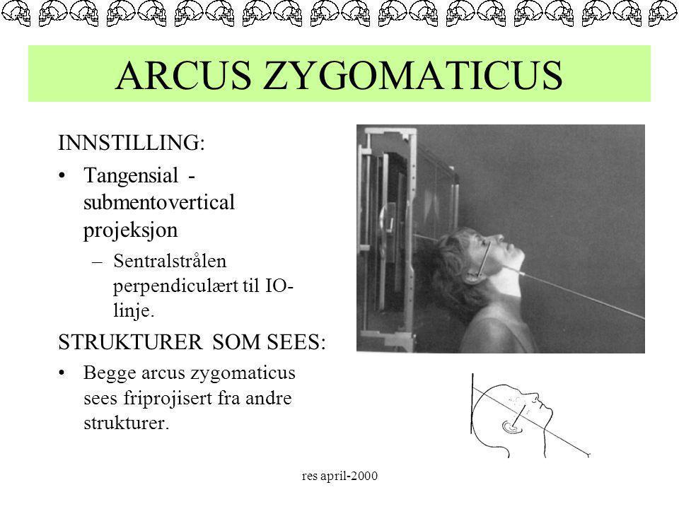 ARCUS ZYGOMATICUS INNSTILLING: