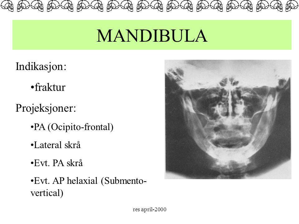 MANDIBULA Indikasjon: fraktur Projeksjoner: PA (Ocipito-frontal)