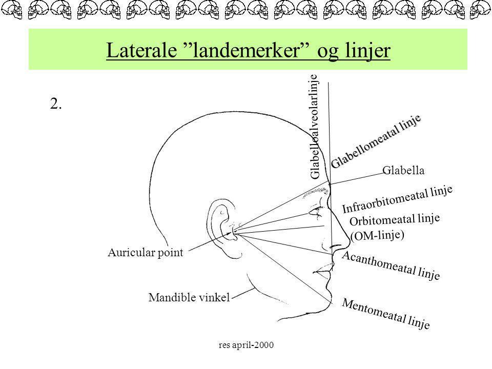 Laterale landemerker og linjer