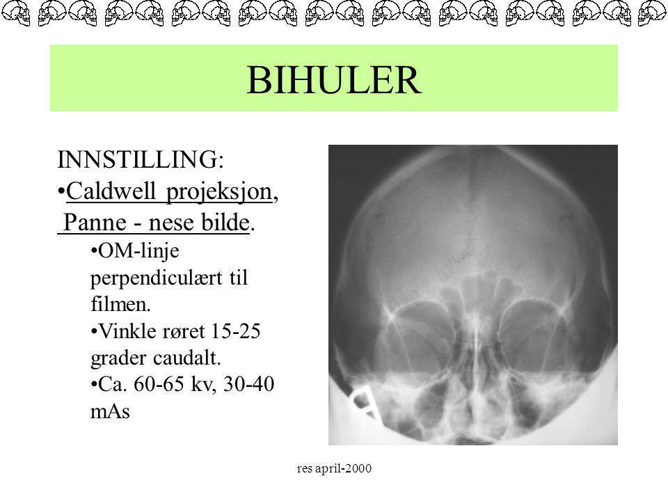 BIHULER INNSTILLING: Caldwell projeksjon, Panne - nese bilde.