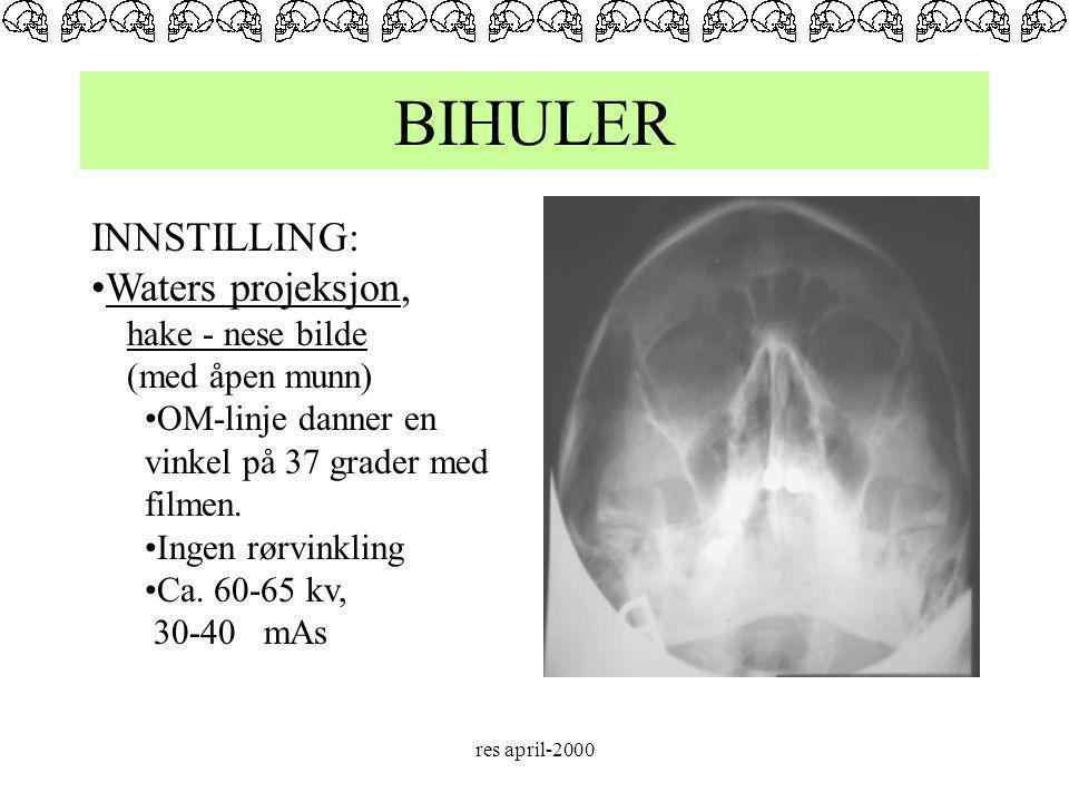 BIHULER INNSTILLING: Waters projeksjon, hake - nese bilde