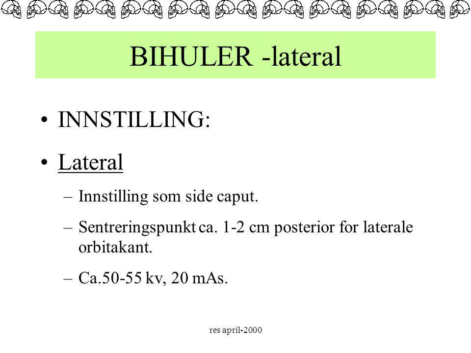 BIHULER -lateral INNSTILLING: Lateral Innstilling som side caput.