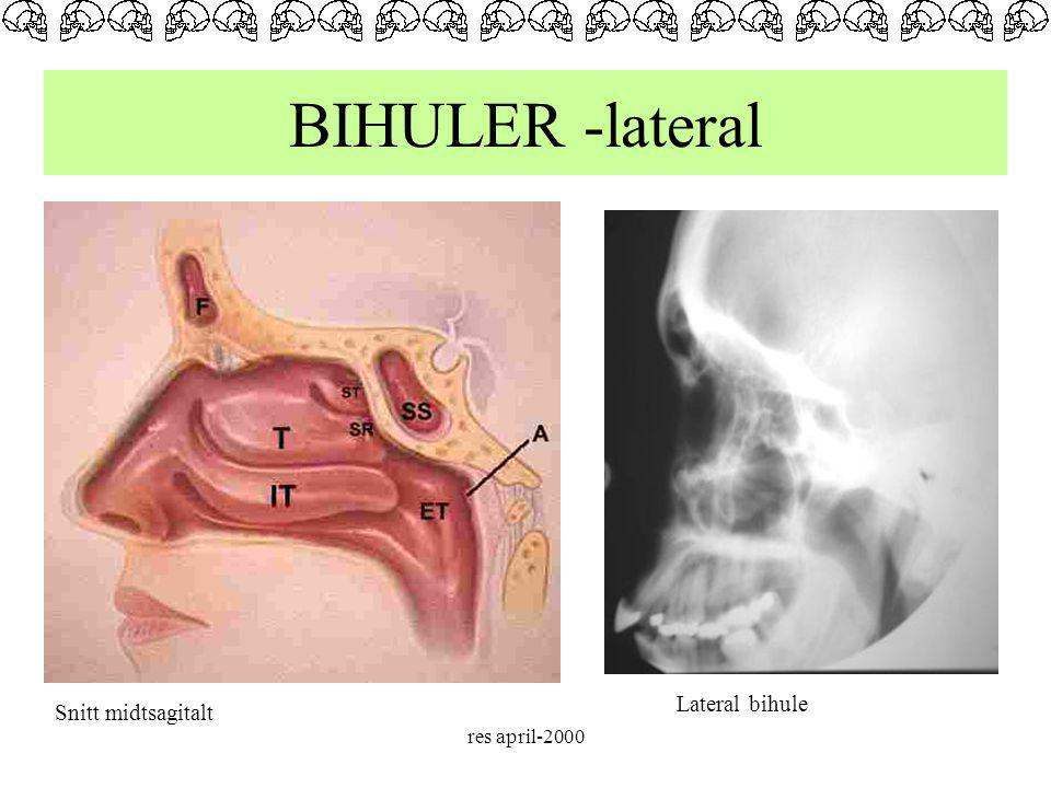 BIHULER -lateral Lateral bihule Snitt midtsagitalt res april-2000