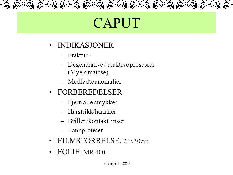CAPUT INDIKASJONER FORBEREDELSER FILMSTØRRELSE: 24x30cm FOLIE: MR 400