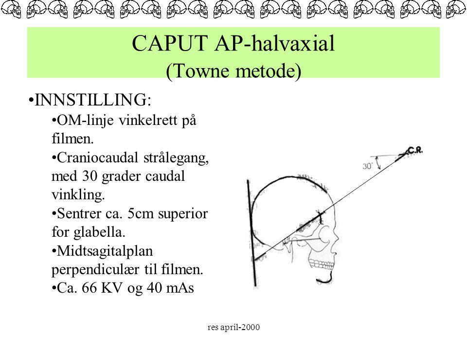 CAPUT AP-halvaxial (Towne metode)