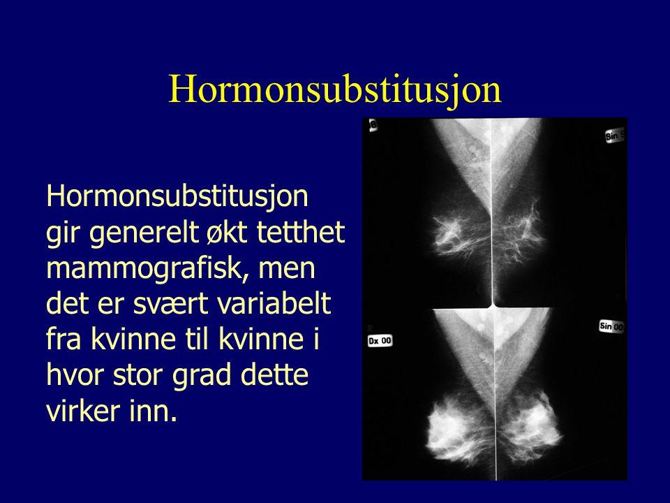 Hormonsubstitusjon