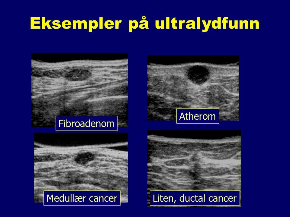 Eksempler på ultralydfunn