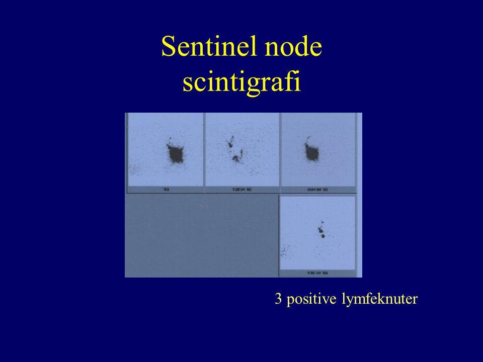 Sentinel node scintigrafi