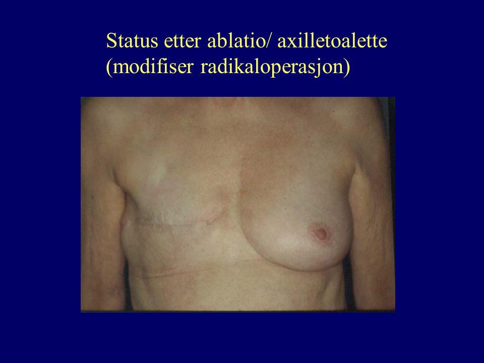 Status etter ablatio/ axilletoalette (modifiser radikaloperasjon)