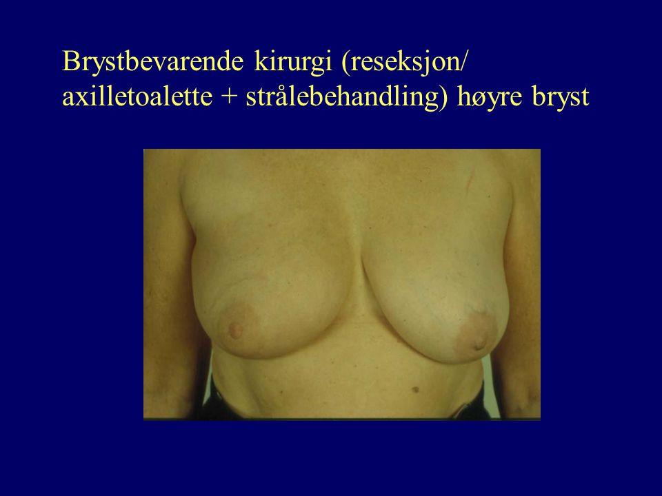 Brystbevarende kirurgi (reseksjon/ axilletoalette + strålebehandling) høyre bryst