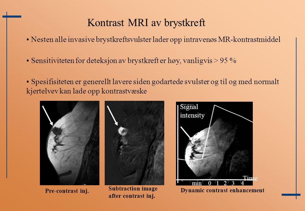 Kontrast MRI av brystkreft
