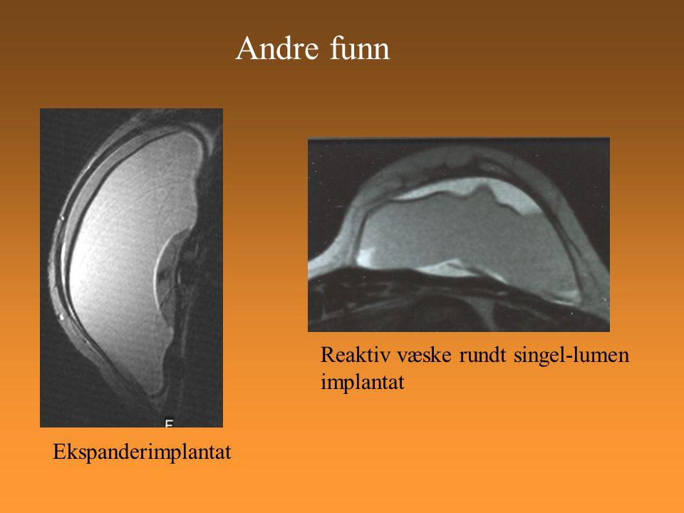 Andre funn Reaktiv væske rundt singel-lumen implantat