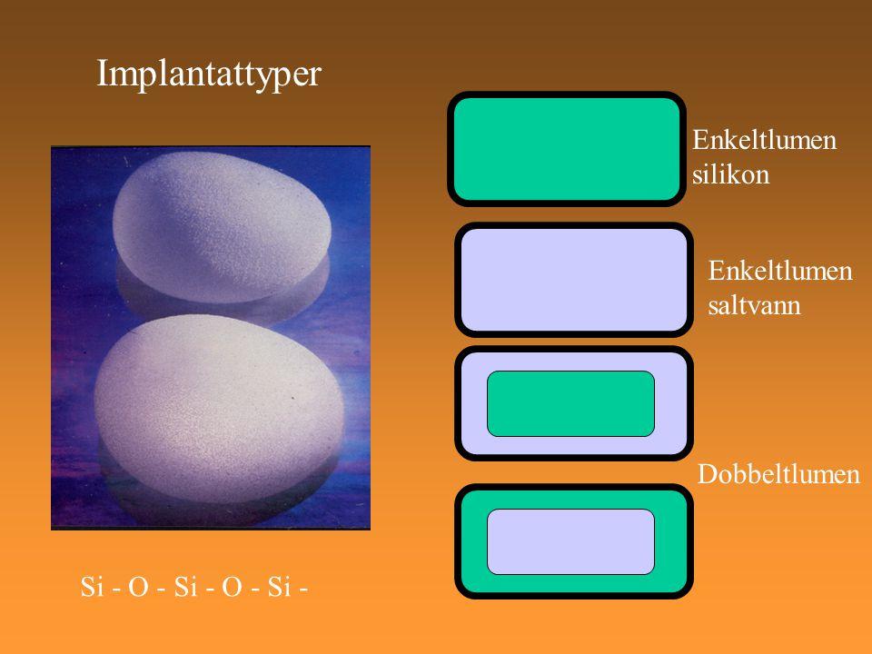 Implantattyper Enkeltlumen silikon Enkeltlumen saltvann Dobbeltlumen
