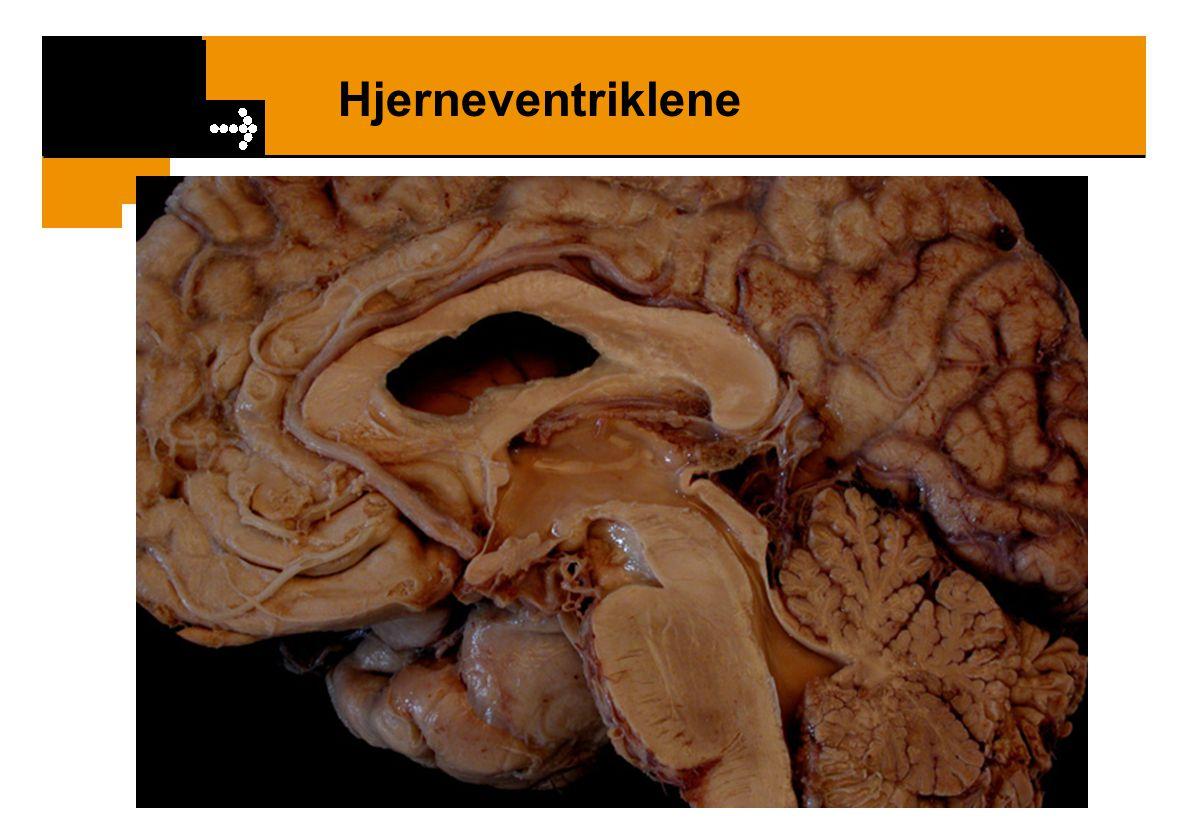 Hjerneventriklene