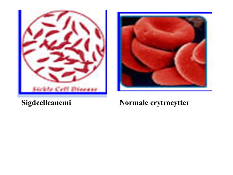 Sigdcelleanemi Normale erytrocytter