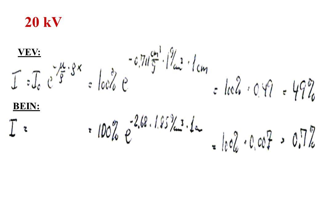 20 kV VEV: BEIN: