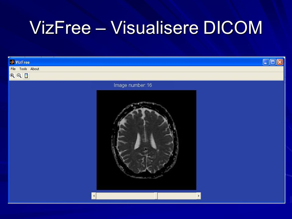 VizFree – Visualisere DICOM