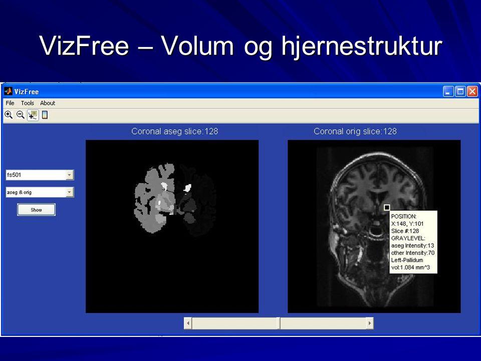VizFree – Volum og hjernestruktur