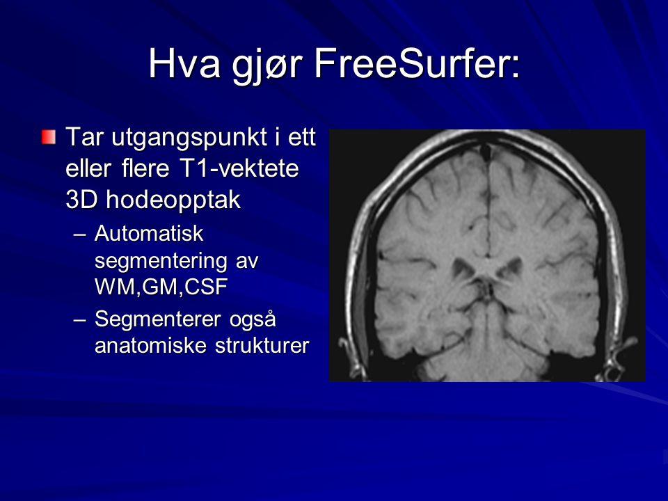 Hva gjør FreeSurfer: Tar utgangspunkt i ett eller flere T1-vektete 3D hodeopptak. Automatisk segmentering av WM,GM,CSF.