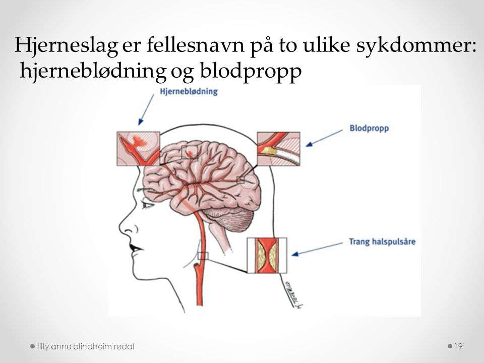 Hjerneslag er fellesnavn på to ulike sykdommer:
