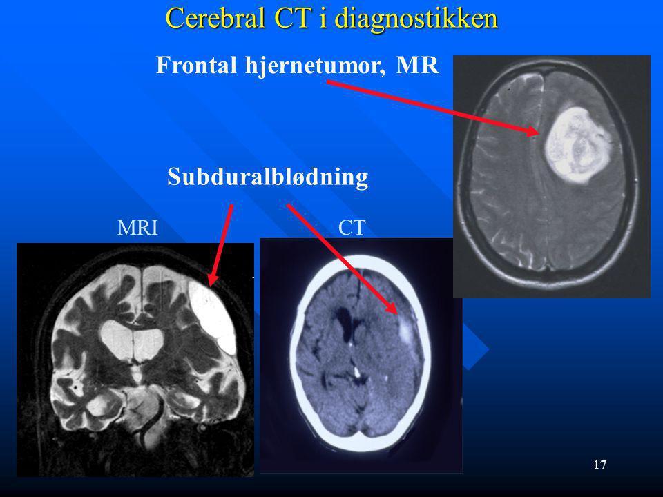 Cerebral CT i diagnostikken