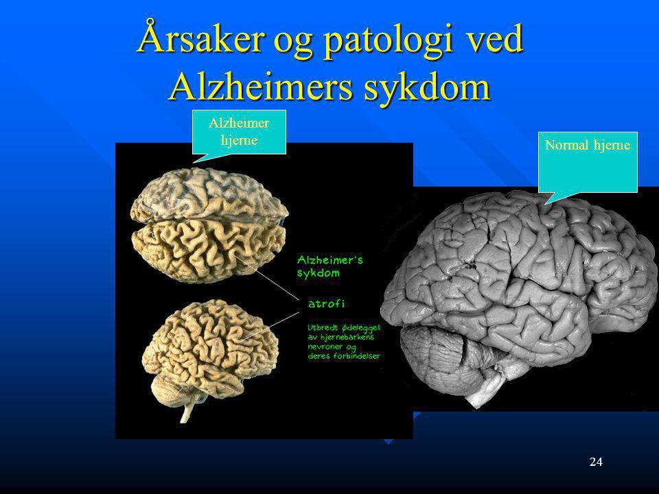 Årsaker og patologi ved Alzheimers sykdom