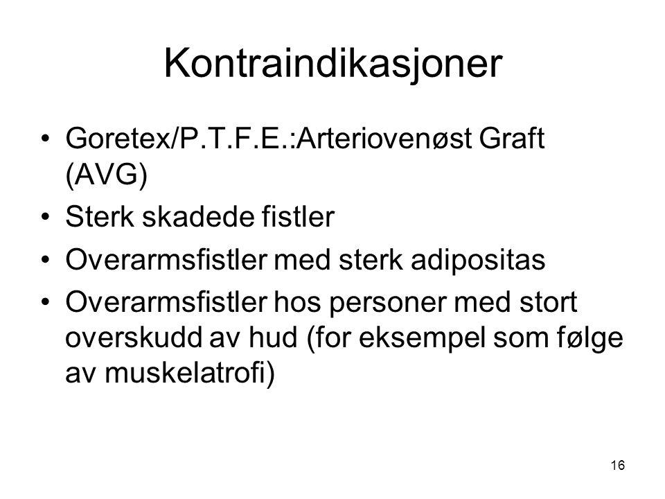 Kontraindikasjoner Goretex/P.T.F.E.:Arteriovenøst Graft (AVG)