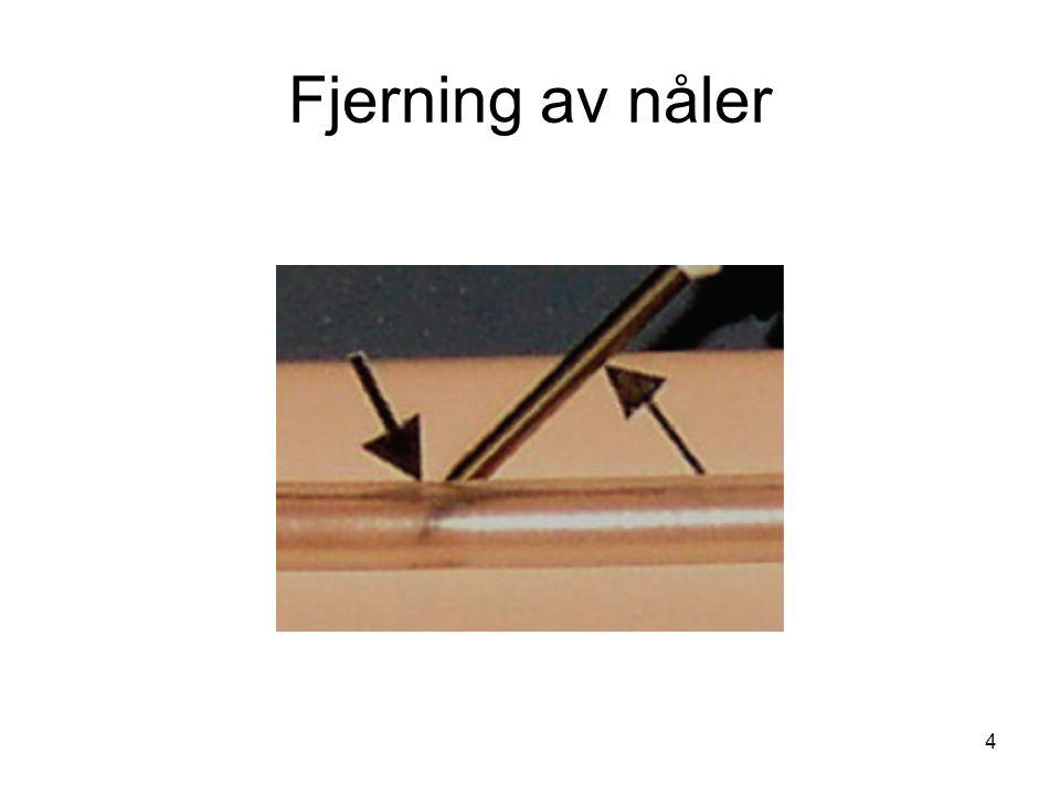 Fjerning av nåler