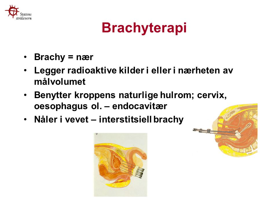 Brachyterapi Brachy = nær