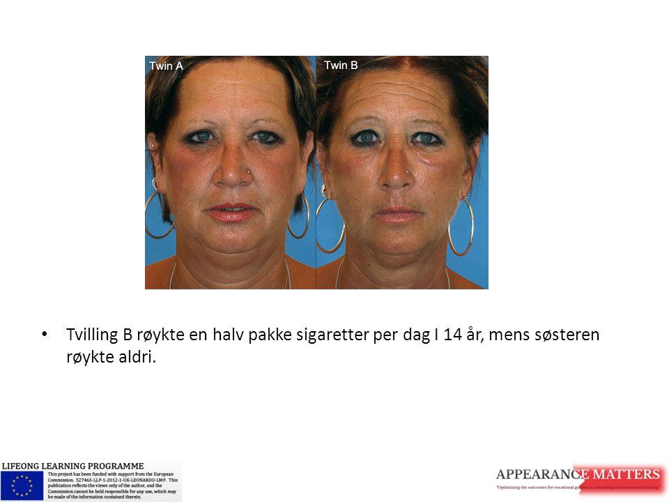 Tvilling B røykte en halv pakke sigaretter per dag I 14 år, mens søsteren røykte aldri.