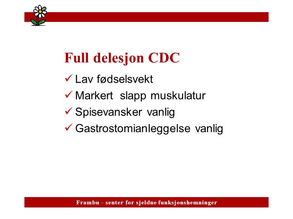 Full delesjon CDC Lav fødselsvekt Markert slapp muskulatur