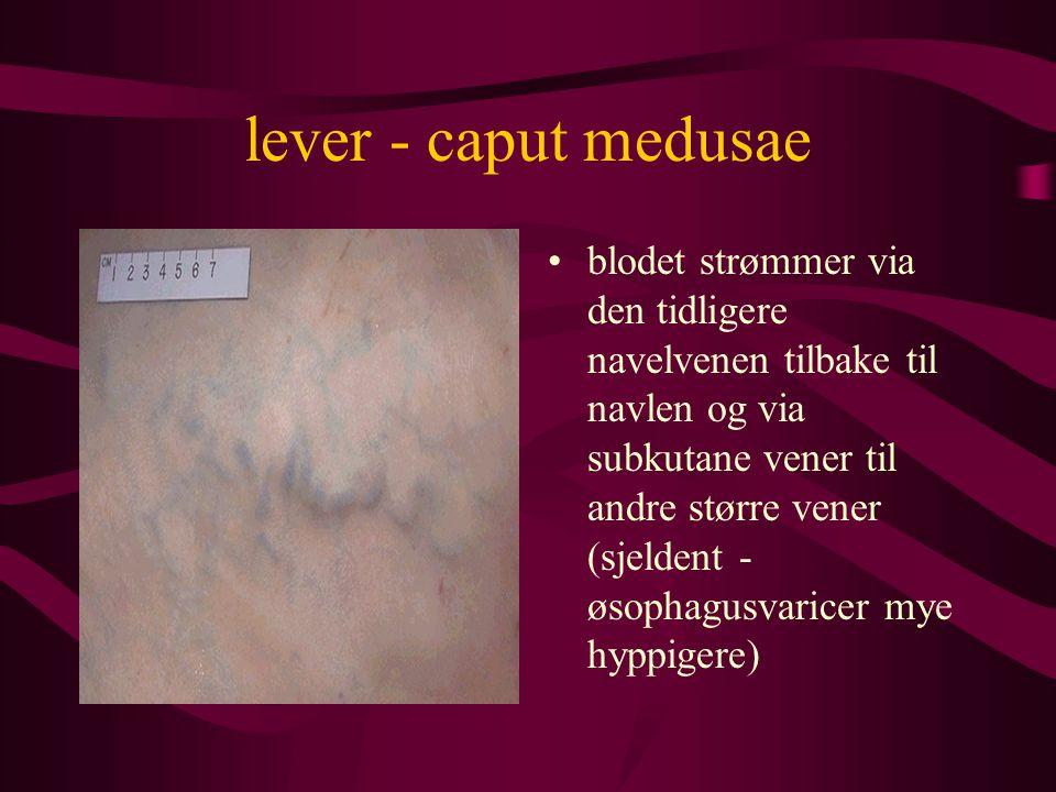 lever - caput medusae