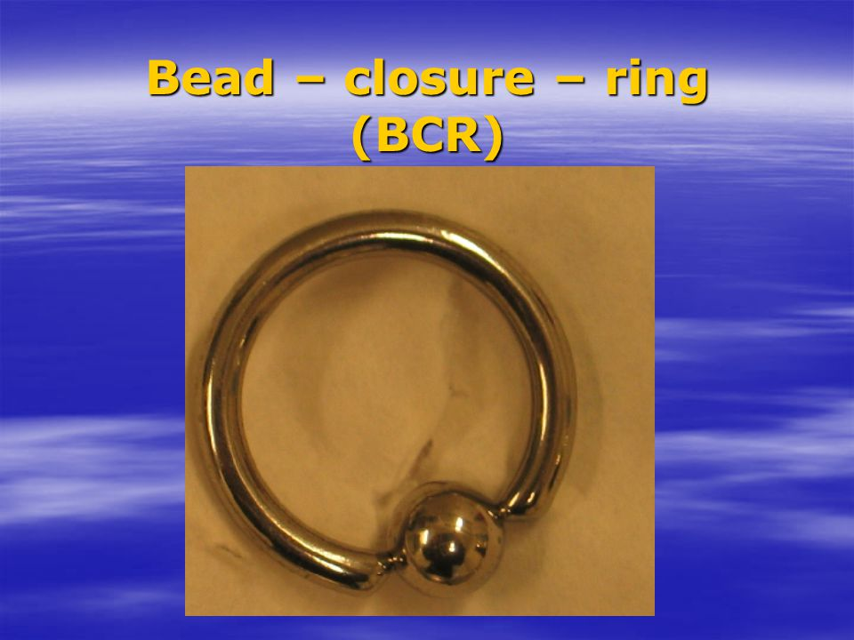 Bead – closure – ring (BCR)