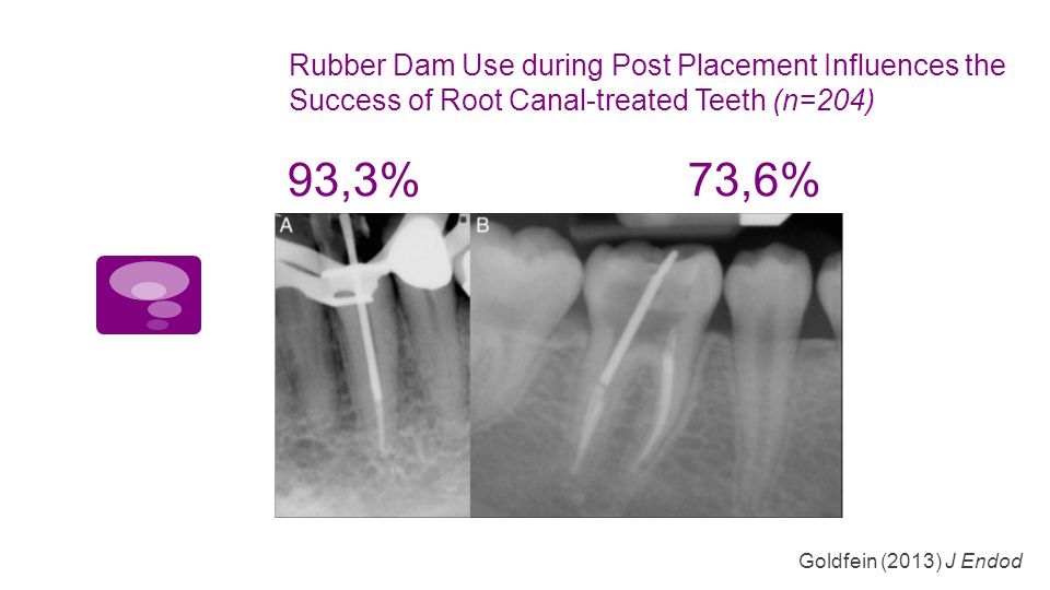 Rubber Dam Use during Post Placement Influences the Success of Root Canal-treated Teeth (n=204)