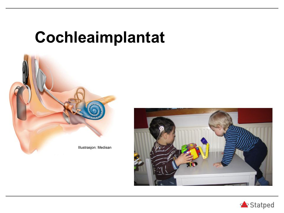 06.04.2017 Cochleaimplantat
