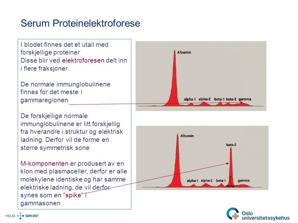 Serum Proteinelektroforese