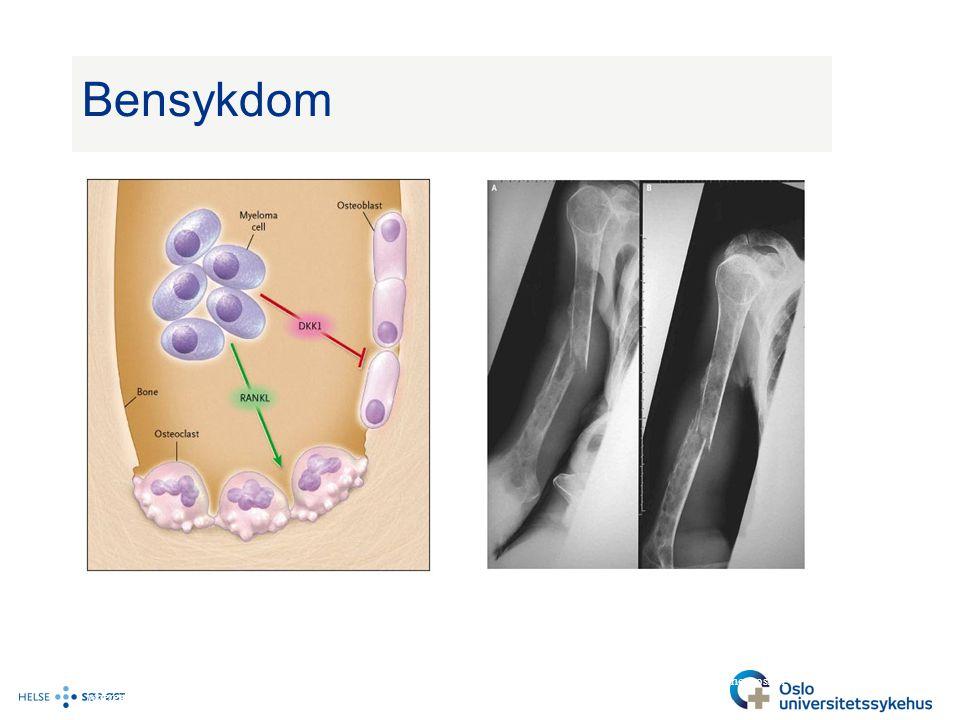 Bensykdom Beinet vil bli spist opp innenfra noe som resultere i osteolyttiske lesjoner.