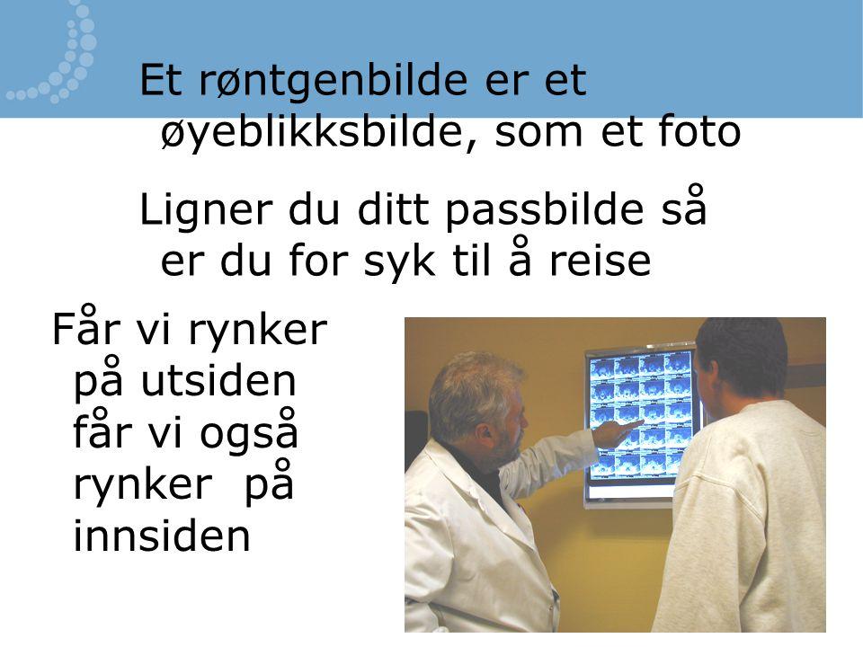 Et røntgenbilde er et øyeblikksbilde, som et foto