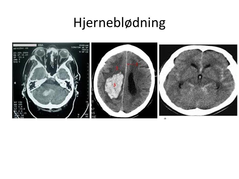 Hjerneblødning