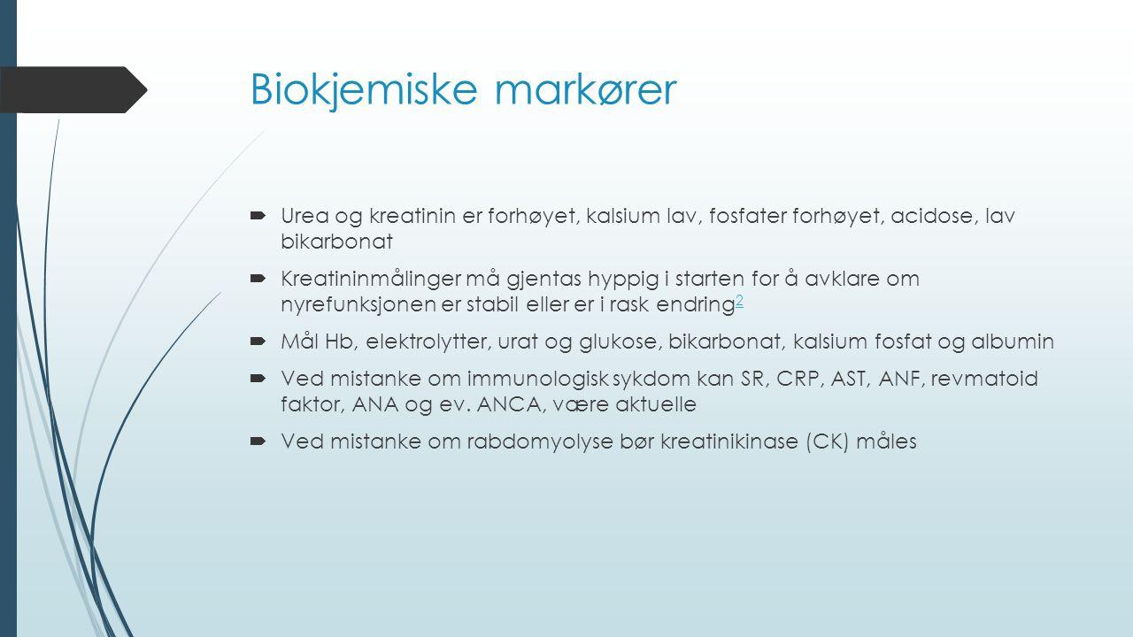 Biokjemiske markører Urea og kreatinin er forhøyet, kalsium lav, fosfater forhøyet, acidose, lav bikarbonat.
