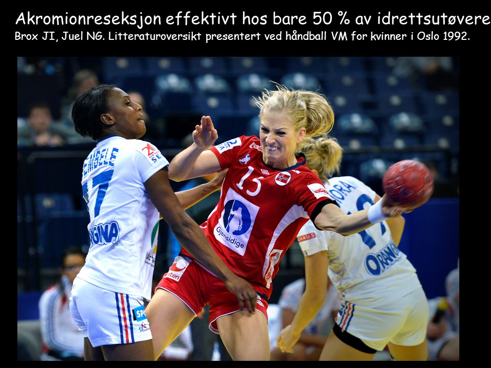 Akromionreseksjon effektivt hos bare 50 % av idrettsutøvere