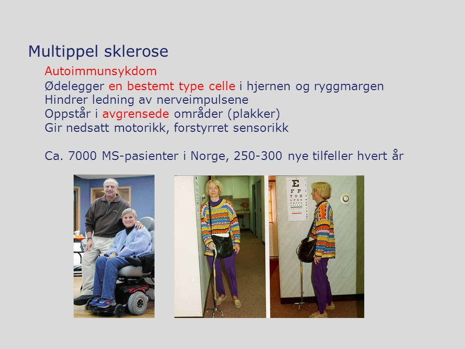 Multippel sklerose Autoimmunsykdom