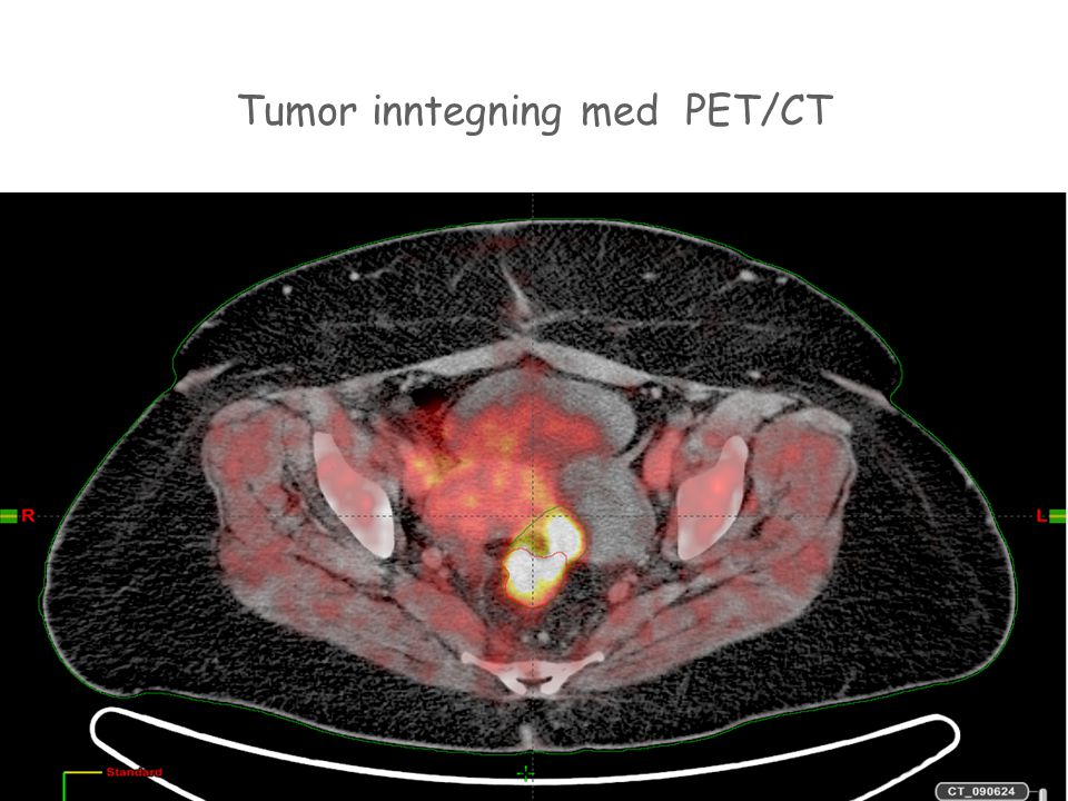 Tumor inntegning med PET/CT