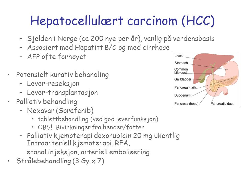 Hepatocellulært carcinom (HCC)