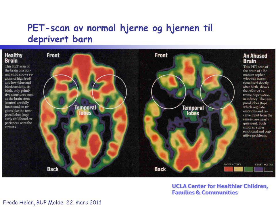 PET-scan av normal hjerne og hjernen til deprivert barn