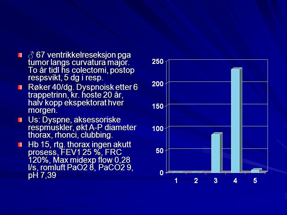 ♂ 67 ventrikkelreseksjon pga tumor langs curvatura major