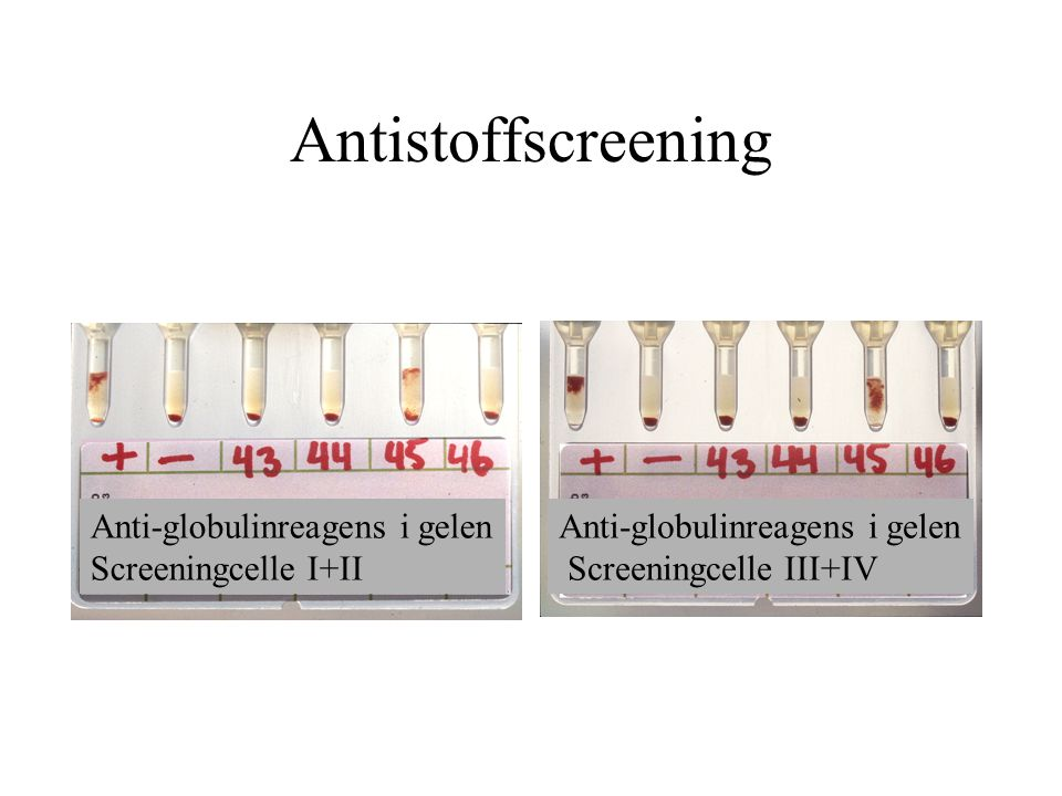 Antistoffscreening Anti-globulinreagens i gelen Screeningcelle I+II