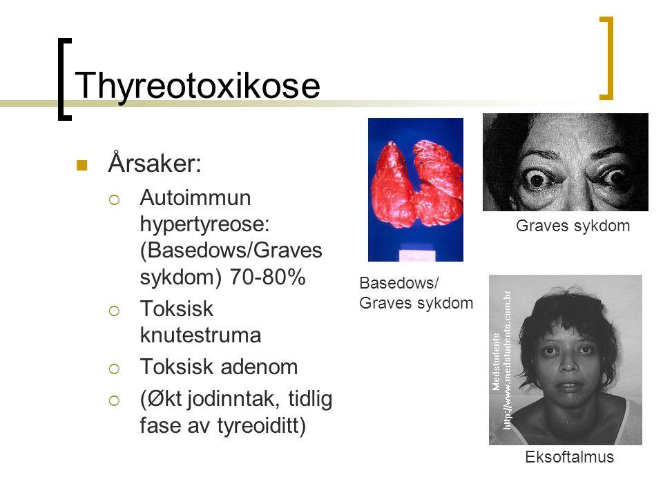 Thyreotoxikose Årsaker:
