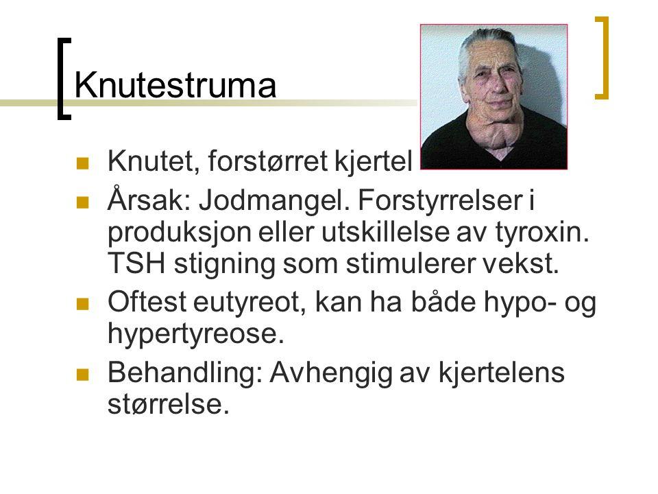 Knutestruma Knutet, forstørret kjertel