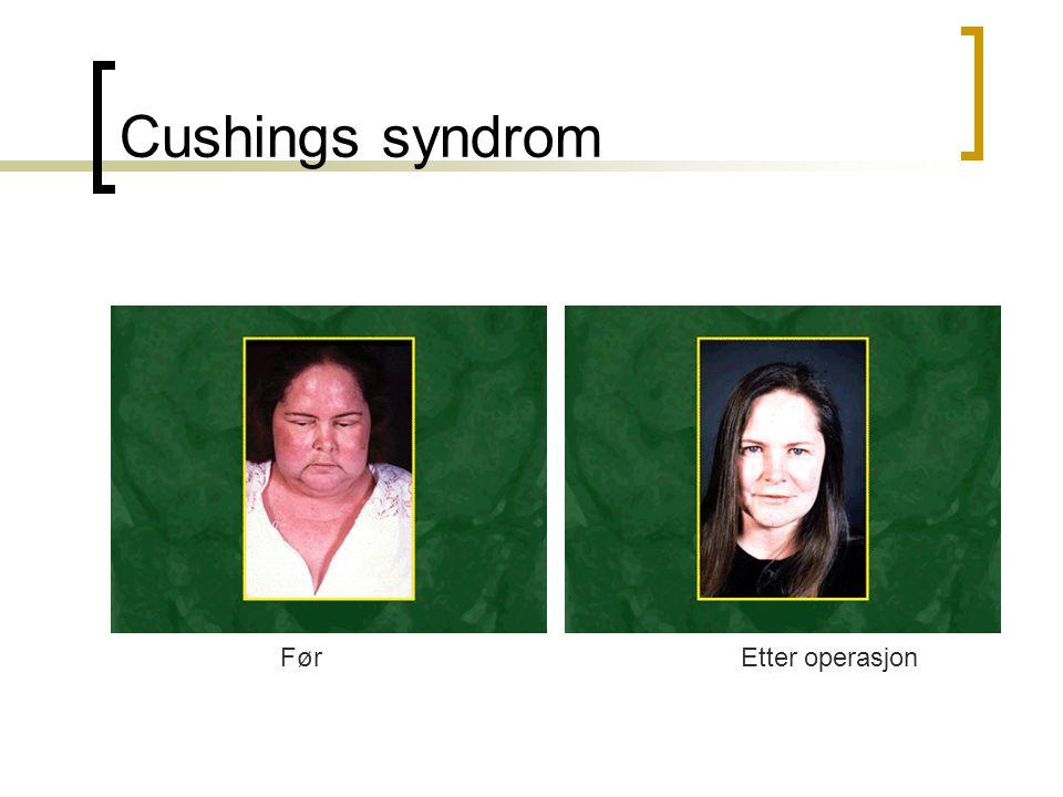 Cushings syndrom Før Etter operasjon
